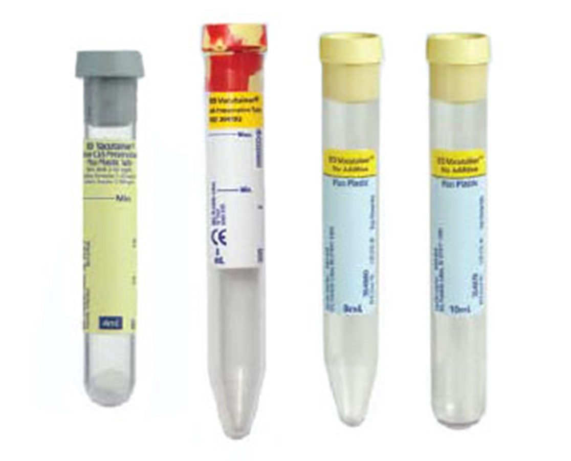 Vacutainer® Urinalysis Tubes BD364992-1-
