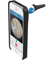 iPhone Otoscope - Clinician's Oto BIO1455