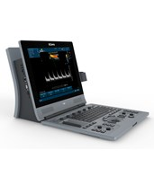 Portable Diagnostic Ultrasound System EDAU60